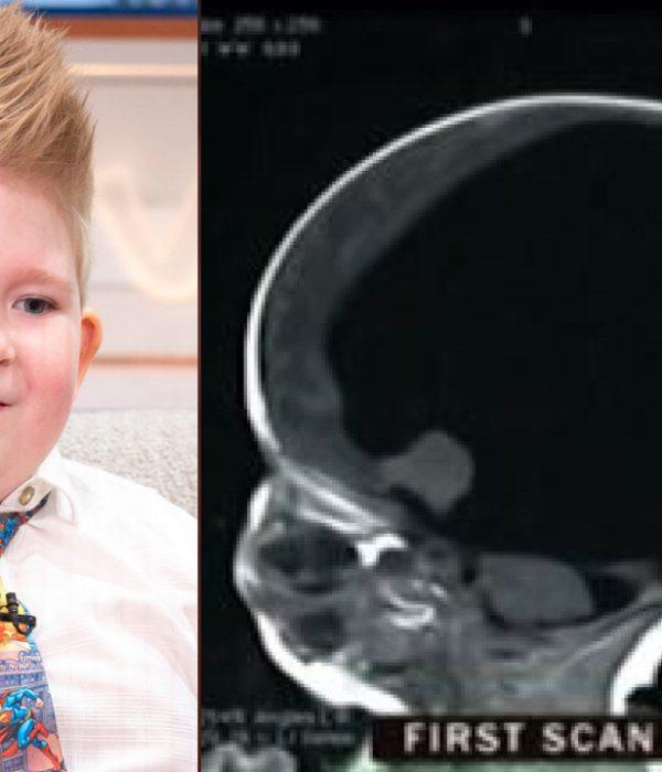 cerebro niño Noah